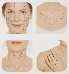 Pontos- aplicação-Skinboosters Os Skinboosters são substâncias aplicadas na pele pelo médico, com objetivo de devolver a hidratação e o viço da pele. #dermatologiaesaúde #especializadoemdermatologia #cuidadoscomapele #rugasnuncamais #dicasdebeleza #dermatologia #dermatologista #pelelinda #skinboosters #rejuvenescimento #hidrataçãodapele