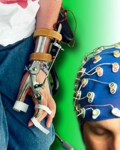 An End to Paralysis with Artificial Brain-to-Muscle Connectors