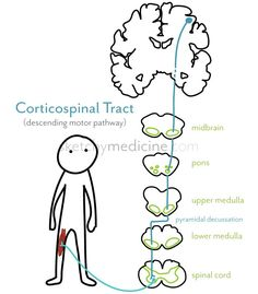 Amyotrophic Lateral Sclerosis (ALS) & the corticospinal tract | Sketchy Medicine