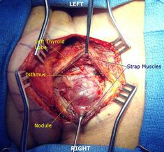 Thyroidectomy surgeon's view.  The thyroidectomy flap has been raised and the strap muscles retracted bilaterally to uncover the thyroid gland. A large nodule is bulging out of the right lobe. The isthmus and left lobe are also visible.