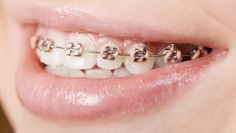 A Cure for Bad Breath? Braces prove a way to help with bad breath. Quick post explaining it.Braces prove a way to help with bad breath. Quick post explaining it. Dental Braces, Teeth Braces, Braces Smile, Dental Care, Pink Braces, Cute Braces Colors, Braces Tips, Getting Braces, Invisible Braces