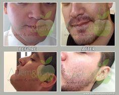 Sakal Ekimi - Beard Transplant