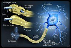 MS and damaged myelin along neurons, disrupting communication and causing damanged nerves