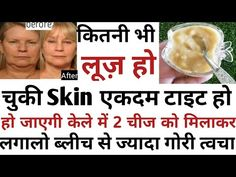 7 Days Challenge-Skin Tightening At Home Banana Face Pack |केले से पाए बेहद गोरी और टाइट त्वचा 100%👍 - YouTube Glowing Skin, True Quotes, Hair Care, Youtube, Recipes, Recipies, Hair Care Tips, Hair Makeup, Ripped Recipes