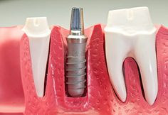 A dental implant is a replacement for the root or roots of a tooth.