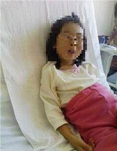 0222 排毒症状   娘の食事改善、その他による排毒症状 ・大量に便が出る(便秘だった) ・涙が出る ・目やにが出る(目が開けづらいほど) ・寝てる時に臭いよだれが出る ・汗をかきやすくなった これらの症状はすぐに起こりました。 また、3ヶ月ほど続き、体重が1.5kg減りました。 その後、イビキをかかなくなり睡眠時無呼吸症も治りました。 この3ヶ月間の変化で、食事の大切さを強く実感することが出来ました。 排毒が終わると、栄養の吸収が高まり始めました。 爪の伸びが異常に早くなり、髪質が変わり始めました。