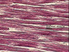 skeletal_muscle.jpg - Great for Sassafras Science Anatomy