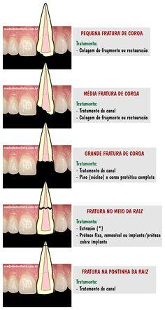 Fraturas dentárias.