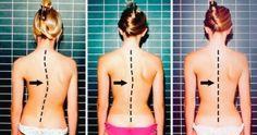 7ótimos exercícios para selivrar dador nas costas