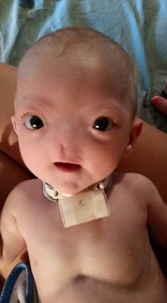 Baby Eli's Rare Condition Hasn't Stopped Him From Being The Cutest Baby On Facebook