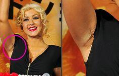 Christina Aguilera Plastic Surgery Plastic Surgery Photos, Celebrity Plastic Surgery, Christina Aguilera Plastic Surgery, Celebrities Before And After, Operation, Pin Pics, Photo Pin, No Photoshop, Feel Better