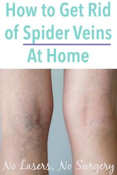 Home Remedies To Get Rid Of Spiders Natural Health Blog
