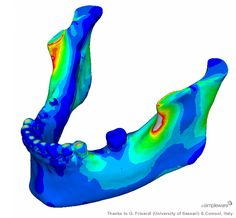 Dental: Finite element analysis of a 3D lower jaw model.