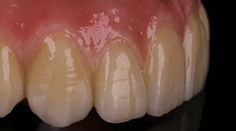 Screw-retained Prettau® Bridge on 6 very divergent implants - by Georg Walcher