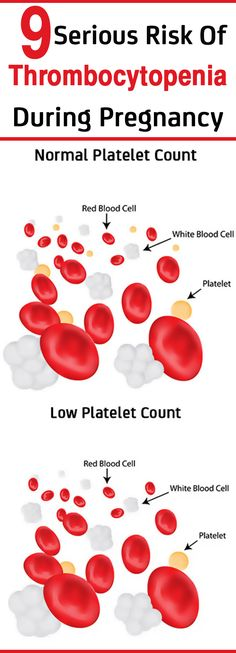 Many pregnant women experience low platelet count in blood referred as Thrombocytopenia in pregnancy. Read to know what causes it & risks associated with it