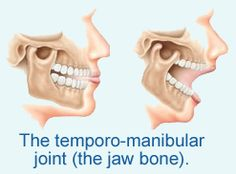 If you jaw and teeth are not lined up correctly it will not only affect your bite but could result in severe headaches and jaw pain. Jaw Pain, Severe Headache, Dental Health, Stupid, It Hurts, Oral Health