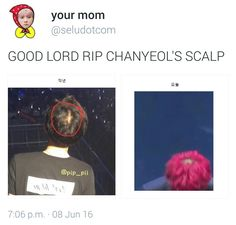 Like the first is a picture from last year and second picture is from a few days ago and the crown is more bald now  #Chanyeol #EXO #EXO-K