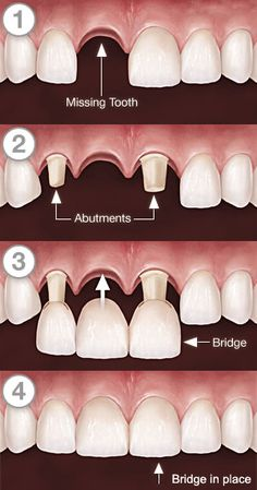 #Dentist in Delhi, India offers Fixed Partial Dentures in India, #Dental #Bridges India, Dental Fixed Bridges, Dental Bridges Delhi, crown metal bridge, stainless steel bridge, metal free bridge.