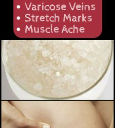 This Powerful 3-Ingredient Mixture Will Help You Get Rid of Cellulite, Varicose Veins, Stretch Marks and Muscle Ache – Page 2 – Airplus