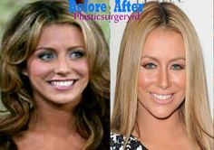 Aubrey O'Day Plastic Surgery Before and After Pictures