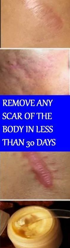 REMOVE ANY SCAR OF THE BODY IN LESS THAN 30 DAYS
