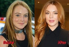 Celebrity cosmetic surgery 2019 ford