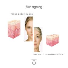 Skin ageing  TEOXANE Official (@teoxaneofficial) • Photos et vidéos Instagram Thin Lips, Wrinkled Skin, Dermal Fillers, Our Body, Face Shapes, Dry Skin, Healthy Skin, Hyaluronic Acid, The Past