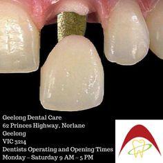 Dental Care, Melbourne, Dental Caps, Dental Health