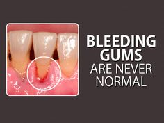 If your gums #bleed when you brush, it could be a sign of gingivitis, the early stage of gum disease. If your gums bleed regularly or enough to worry you, make an appointment with your dentist