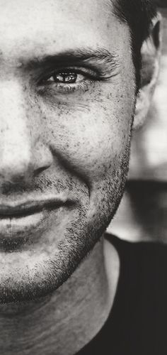 THOSE FRECKLES