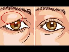 How To Treat Droopy Eyelids Naturally. The Results Are Amazing! How To Treat Droopy Eyelids Naturally. The Results Are Amazing! Drooping Eyelids, Droopy Eyes, Saggy Eyelids, Beauty Care, Beauty Skin, Health And Beauty, Beauty Box, Diy Beauty, Beauty Secrets