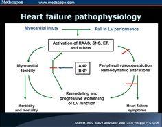 49 Best Heart Failure images | Heart failure, Heart ...