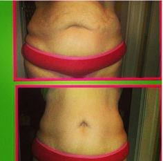 Great It Works body wraps before and after! Jennbar26@gmail.com  www.wrapinup.myitworks.com