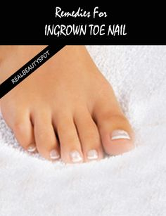 Treating ingrown toenails is a tricky task as they get infected pretty fast. Your search for some effective natural solutions for ingrown toe nails can now be put to rest. We have the good news for you. There exists a huge gift collection from Mother Natu Herbal Remedies, Home Remedies, Natural Remedies, Health Remedies, Ingrown Toe Nail, Ingrown Hair, Toenail Fungus Remedies, Bombshell Beauty, Foot Soak