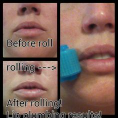 Before & After Rodan + Fields Amp Md
