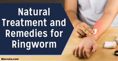 Here are the natural treatments and remedies for ringworm. However, before undergoing any treatment, natural or otherwise, it's very important to visit a doctor first for a proper diagnosis.