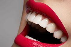 ¿Como lucir dientes más blancos? Rectas caseras y tips.