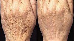 As manchas que aparecem com a idade, normalmente localizam-se nos ombros, rosto, mãos, e outras partes da pele, especialmente aquelas que estiveram mais expostas ao sol ao longo da vida. Essas manchas normalmente aparecem em adultos com mais de 40 anos, mas por vezes as pessoas mais jovens também são afectadas.