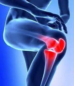 Cura para la artritis, ciática, reumatismo, dolor en las rodillas, y enfermedades de las articulaciones