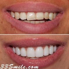 Some veneers and a crown really enhanced our patients smile! We were all very happy with the results! #drjamsmiles #33Smile . . All photos and video of patients are of our actual patients. All media is the of Cosmetic Dental Associates. Any use of media contained herein is prohibited without written consent. . . #satx #satxdentist #dentistry #goals #smile #teeth #instagoals #transformationtuesday #beforeandafter #whiteteeth #perfect #transformation #teethwhitening #veneers #Invisalign #porcela Insta Goals, Dental Cosmetics, Smile Teeth, Dental Procedures, Cosmetic Dentistry, Transformation Tuesday, Beautiful Smile, Teeth Whitening, Crown