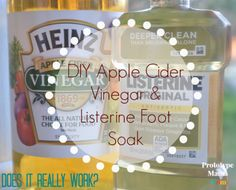 DIY Apple Cider Vinegar and Listerine Foot Soak (yay or nay) - another thing worth trying...
