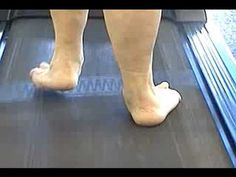 ▶ pronated foot posterior view - YouTube