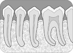 An abrupt disappearance of the large canal in the mandibular first premolar usually signifies a canal bifurcation.