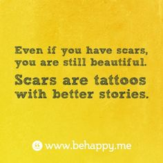 Even if you have scars, you are still beautiful.  Scars are tattoos with better stories.