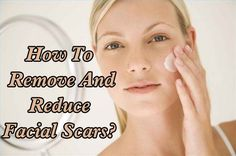 Facial Scars Removal Tips: Follow these homemade remedies which will help loosening and scrubbing off the acne scars.   Exclusive from Deluxspa