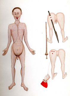 ARDERNE, John of (1307- end of 14th century) Javelin wound. Like, ow!