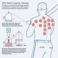 The benefits of Cupping in modern massage therapy — UFIT Clinic Cupping Points, Hijama Cupping, Cupping Therapy, Massage Therapy, Blood Cupping, Benefits Of Cupping, Acupuncture Benefits, Massage Benefits, Alternative Therapies