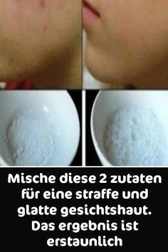Mix these 2 ingredients for a firm and smooth facial skin. The result i . Mix these 2 ingredients for a firm and smooth facial skin. The result is astonishing Beauty Care, Diy Beauty, Beauty Skin, Health And Beauty, Homemade Beauty, Healthy Beauty, Beauty Ideas, Beauty Hacks Acne, Beauty Tips For Face