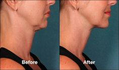 Get rid of your double chin!!