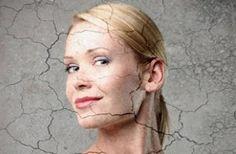 У кого сухая кожа? А как вы решаете проблему с сухой кожей? Пишите в коментариях Особенно зимой сухая кожа требует более внимательного ухода. И здесь важно все и начинать надо с умывалки. если хотите узнатьоб идеальной умывалке для сухой кожи, ставьте плюсики в коментариях +++  Для начала давайте разберемся, что такое кожа. Наша кожа состоит из ДЕРМЫ, ЭПИДЕРМИСА и РОГОВОГО слоя. При этом она на 2\3 состоит из воды.  Дерма состоит из воды на 50%. Эту воду она получает из кровеносных сосудов…